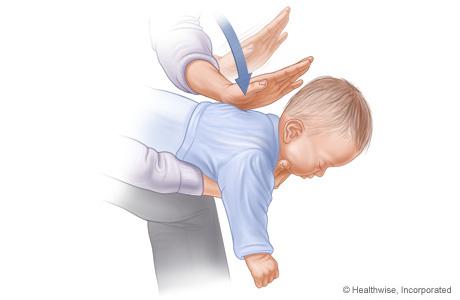 Choking Baby; Terrible Mother